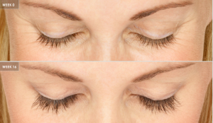 Latisse® For Longer Lashes