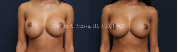 Breast Secondary Corrective Surgery Before and After