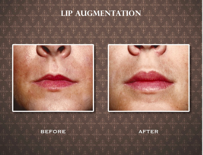 Injectables for Luscious Lips | Weston Cosmetic Surgery Center