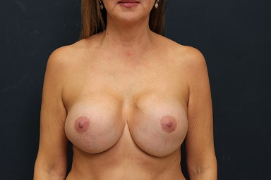 Breast Implant Removal in Weston, Florida Before Patient 1