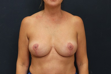 Breast Implant Removal in Weston, Florida After Patient 1