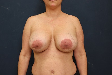 Breast Implant Removal in Weston, Florida Before Patient 2