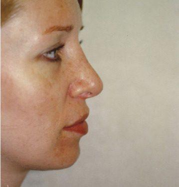 Rhinoplasty in Weston, Florida After Patient 1