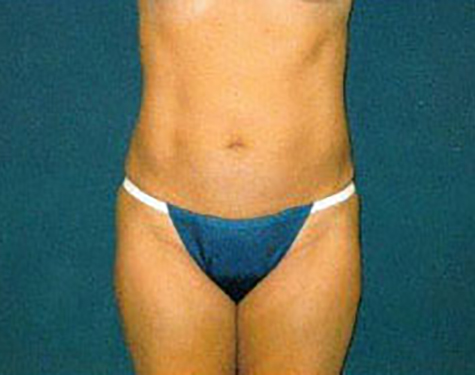 Liposuction in Weston, Florida After Patient 1