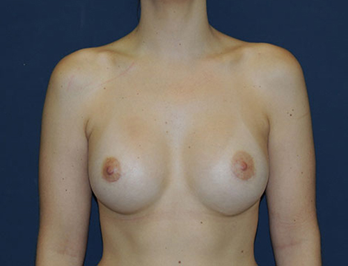 Secondary Breast Augmentation in Weston, Florida After Patient 1
