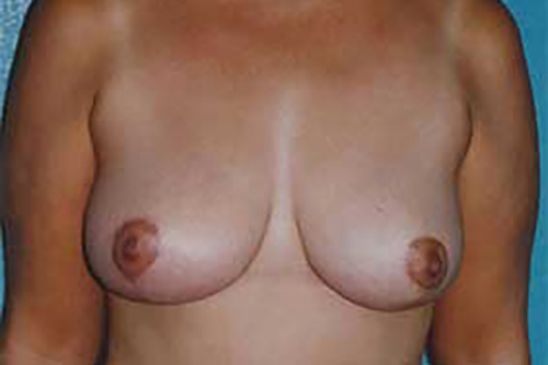 Breast Reduction in Weston, Florida After Patient 1