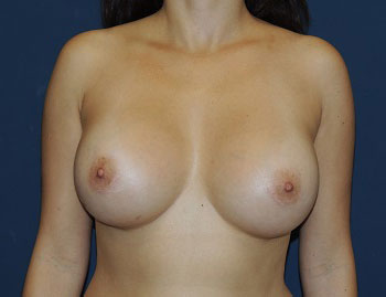 Breast Augmentation in Weston, Florida After Patient 1