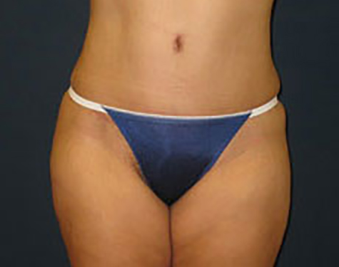 Liposuction in Weston, Florida After Patient 2