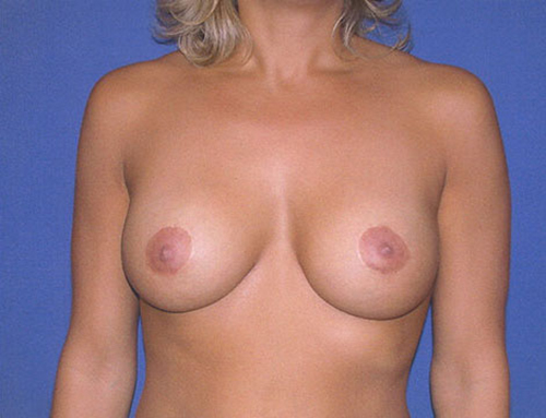 Secondary Breast Augmentation in Weston, Florida After Patient 2