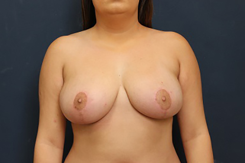 Breast Reduction in Weston, Florida After Patient 2