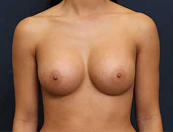 Breast Augmentation in Weston, Florida After Patient 2