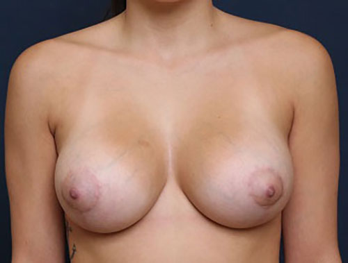Breast Augmentation with Lift in Weston, FL After Patient 1