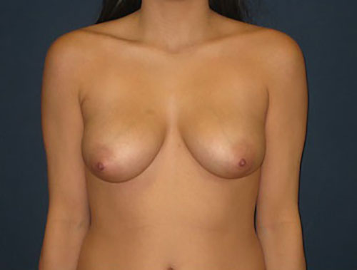 Breast Augmentation with Lift in Weston, FL Before Patient 1