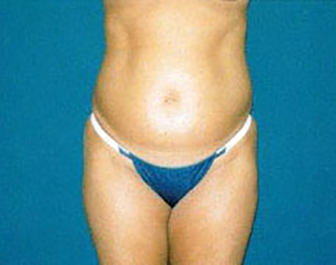 Liposuction in Weston, Florida Before Patient 1