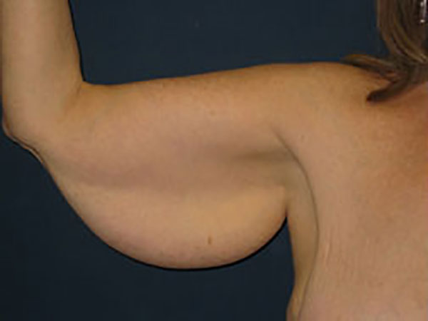 Arm Lift in Weston, Florida Before Patient 1