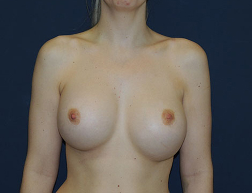 Secondary Breast Augmentation in Weston, Florida Before Patient 1