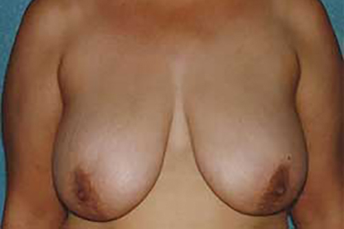 Breast Reduction in Weston, Florida Before Patient 1