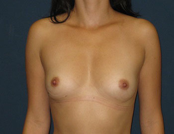 Breast Augmentation in Weston, Florida Before Patient 1