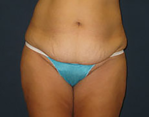 Liposuction in Weston, Florida Before Patient 2