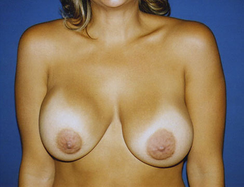 Secondary Breast Augmentation in Weston, Florida Before Patient 2