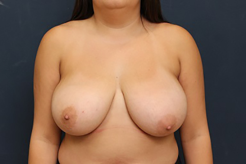 Breast Reduction in Weston, Florida Before Patient 2