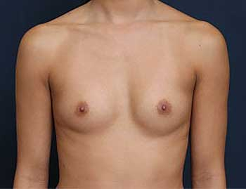 Breast Augmentation in Weston, Florida Before Patient 2