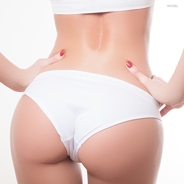 A More  Lifted Buttocks Featured Model