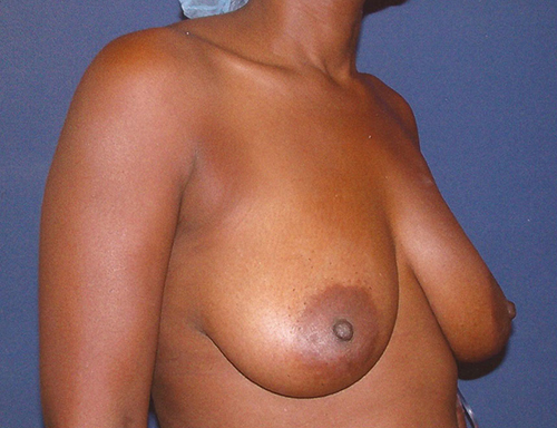 Breast Lift in Weston, Florida Before Patient 1