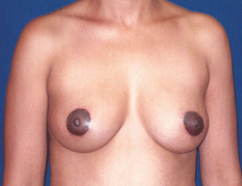 Breast Lift in Weston, Florida After Patient 2