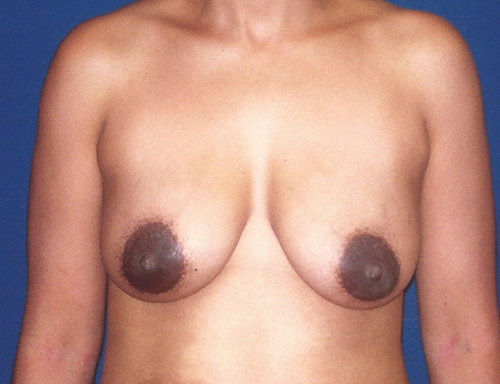 Breast Lift in Weston, Florida Before Patient 2
