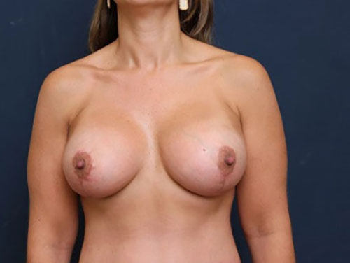 Breast Augmentation with Lift in Weston, FL After Patient 2