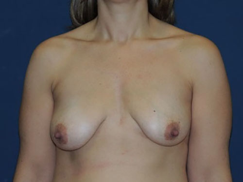 Breast Augmentation with Lift in Weston, FL Before Patient 2