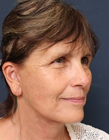 Facelift in Weston, Florida After Patient 2