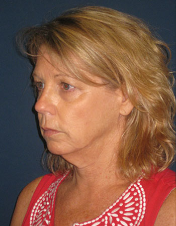 Facelift in Weston, Florida Before Patient 1