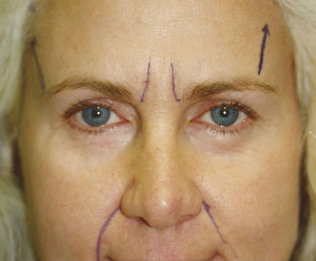 Eyebrow / Forehead Lift in Weston, Florida Before Patient 2