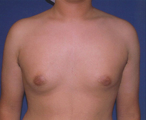 Male Breast Reduction in Weston, Florida After Patient 1