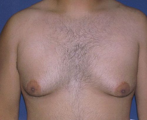 Male Breast Reduction in Weston, Florida Before Patient 1