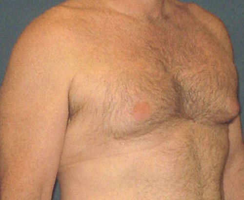 Male Breast Reduction in Weston, Florida Before Patient 2