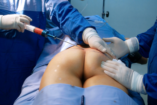 fat injection to increasing buttock-img-blog