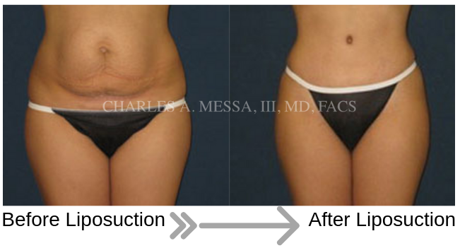 Patient Before and After Liposuction on Abdomen