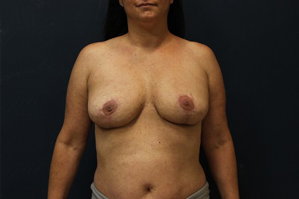 Breast Implant Removal in Weston, Florida After Patient 2