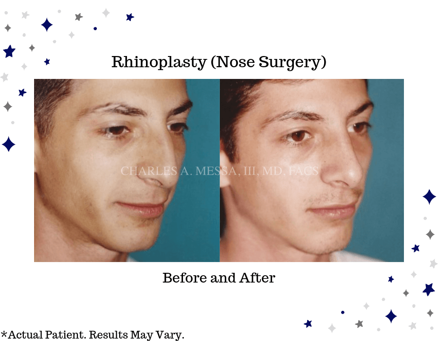 Before and after image of a man after rhinoplasty (nose surgery). The bridge of the nose is one of the most common nasal areas to correct.