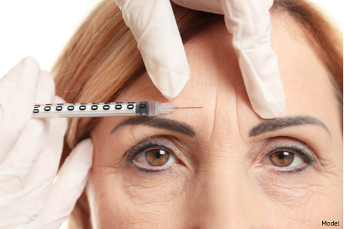 A woman with deep forehead wrinkles is receiving a BOTOX® Cosmetic treatment to help erase the fine lines and furrows.