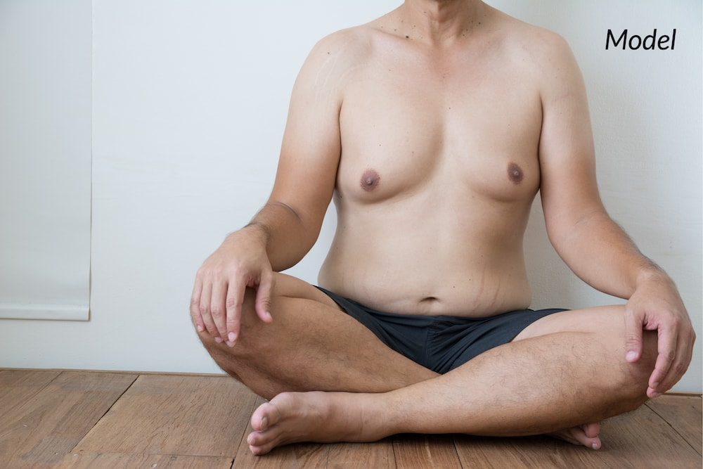 A man that is suffering from a medical condition called gynecomastia.