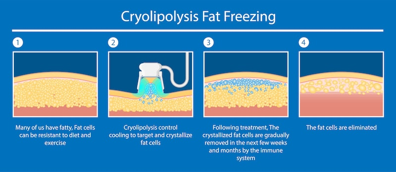Vector demonstrating how cryolipolysis like CoolSculpting works.